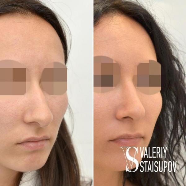 Пациентка до и после ринопластики у доктора Стайсупова