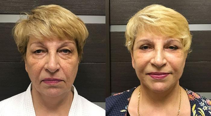 подтяжка лица Ольга Ованесова