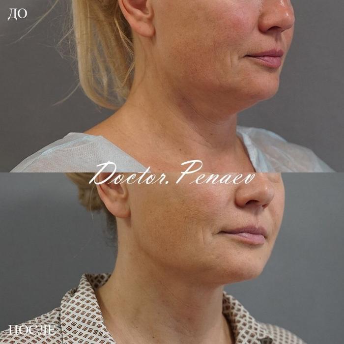Пациентка до и после VASER-липосакции и подтяжки лица нитями