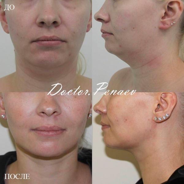 Пациентка доктора Арслана Пенаева до и после подтяжки лица нитями Spring Thread