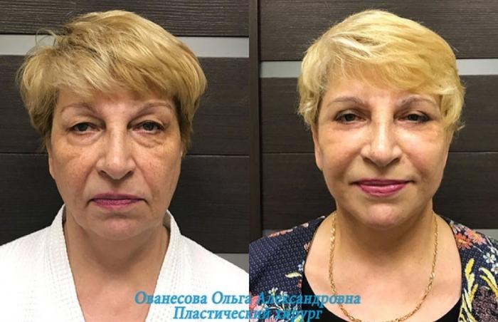 Пациентка до и после омоложения у доктора Ольги Ованесовой