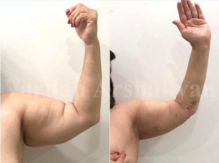 Пациентка доктора Аршакяна до и после радиочастотной подтяжки рук BrakhioTite