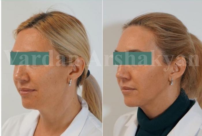 Пациентка доктора Аршакяна после скульптурирования лица FaceTite