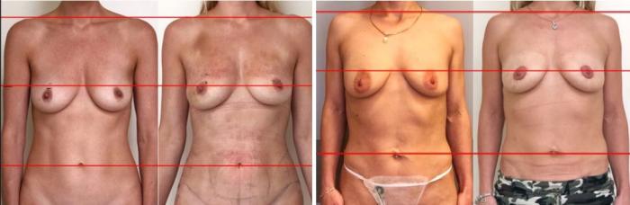 Фото пациенток после подтяжки груди BreastTite у доктора Вардана Аршакяна