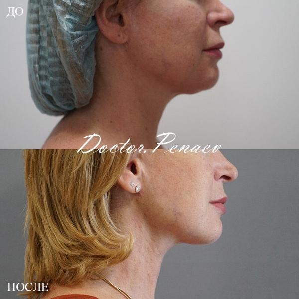 Пациентка доктора Пенаева до и после подтяжки лица нитями Spring Thread