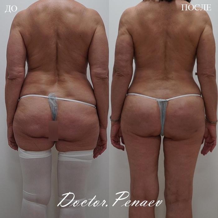 Пациентка доктора Пенаева до и после Vaser-липосакции