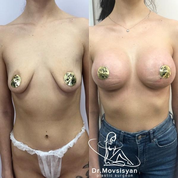 Пациентка доктора Нарека Мовсисяна до и после маммопластики