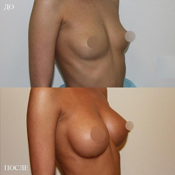 Пациентка доктора Пенаева до и после маммопластики