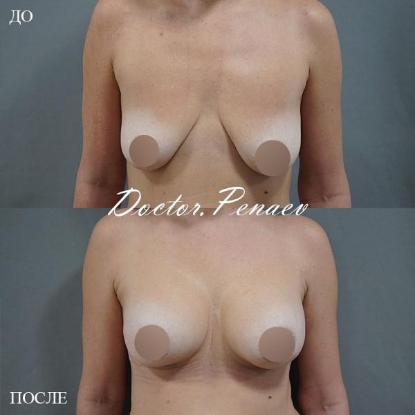 Пациентка доктора Пенаева до и после пластики груди