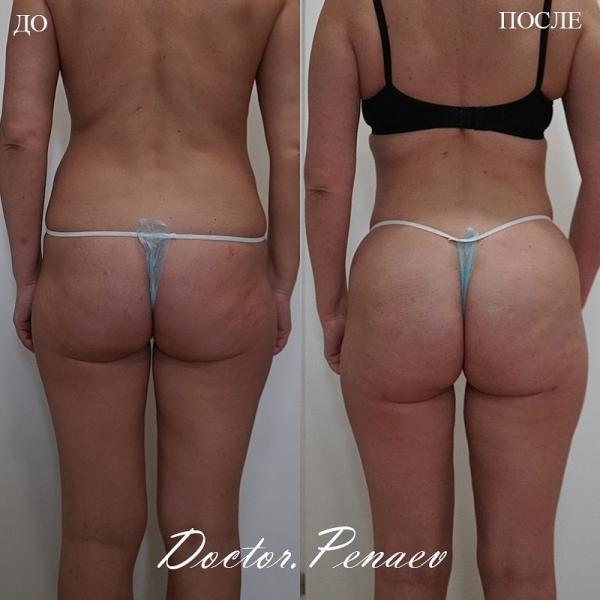 Пациентка доктора Пенаева до и после Вазер-липосакции