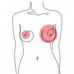 Асимметрия после увеличения груди: причины и решения