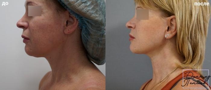 Пациентка доктора Арслана Пенаева до и после нитевого лифтинга лица