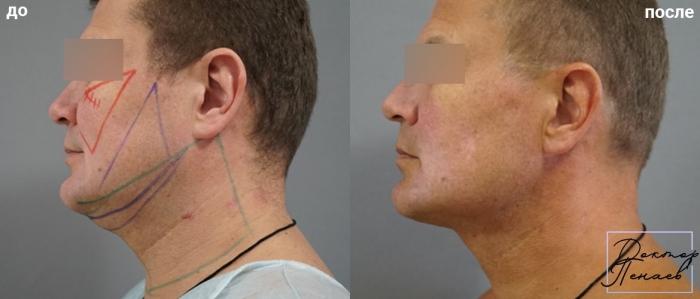 Пациент доктора Пенаева до и после мультитехнологичного лифтинга лица