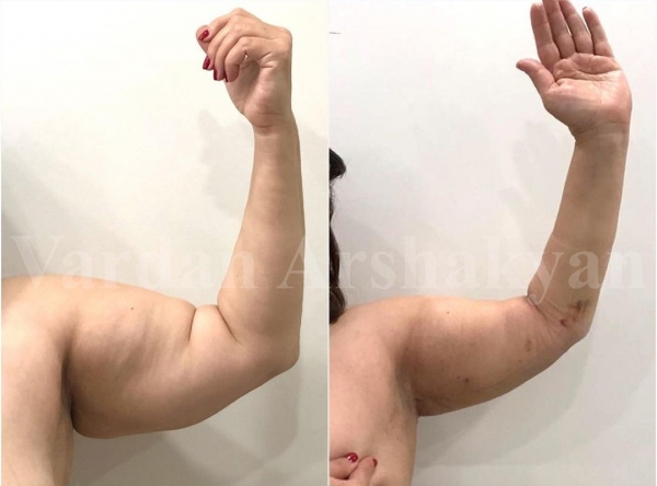 Пациентка доктора Аршакяна до и после пластики плеч BrakhioTite