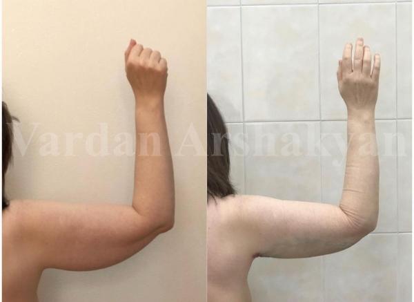 Пациентка доктора Аршакяна до и после радиочастотной пластики плеч BrakhioTite
