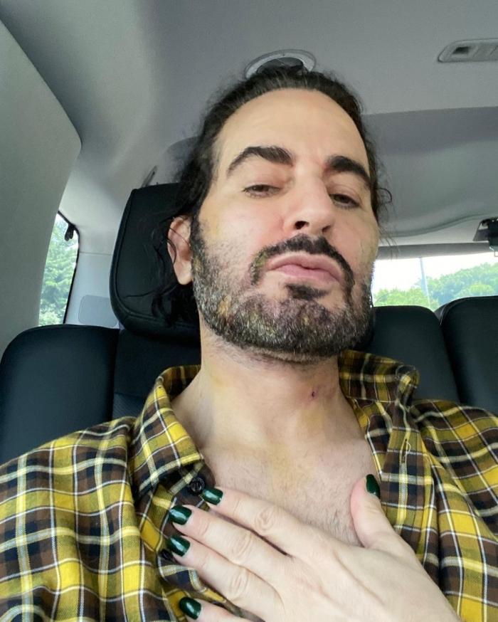 Марк Джейкобс на 6 день после подтяжки лица