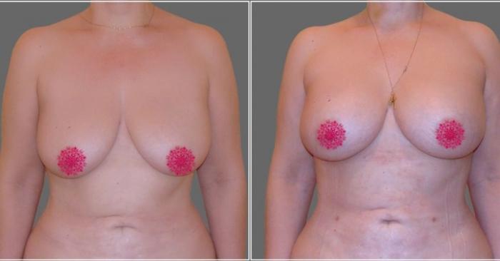 Пациентка до и после увеличения груди